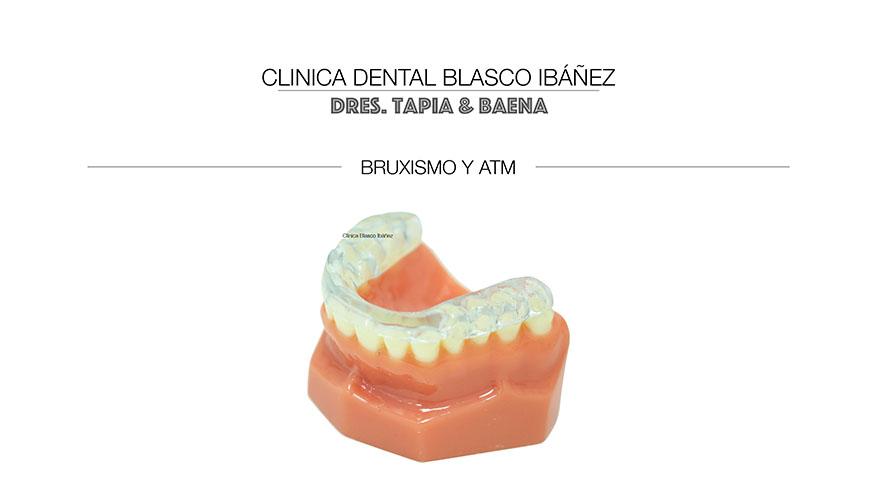 Bruxismo y ATM. Técnica dental