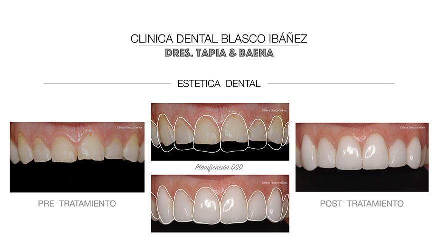 Estética dental sanchinarro