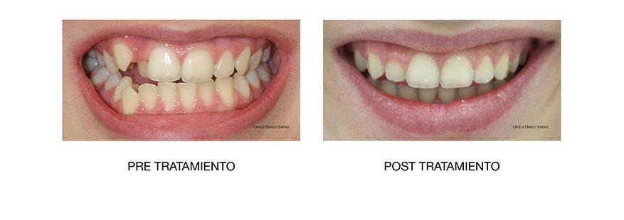 Ortodoncia post tratamiento