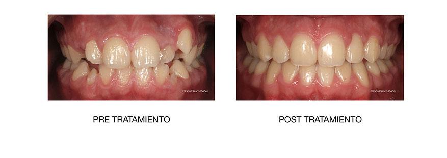 Ortodoncia post tratamiento Madrid