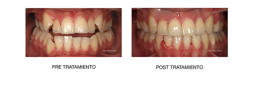 Ortodoncia post tratamiento Sanchinarro