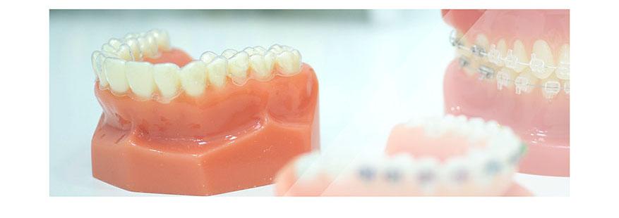 Ortodoncia alineadores